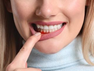歯周病には早めの手立てを! 食道がんや胃がんとの関連を示す研究も