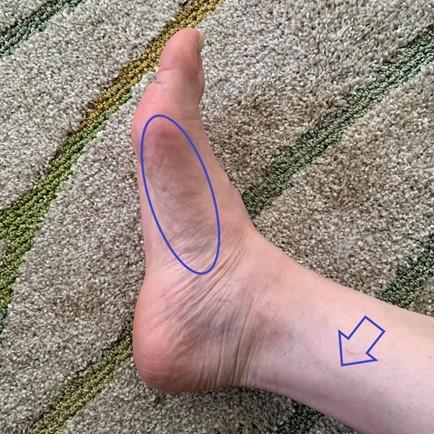 足刺激前の状態の画像