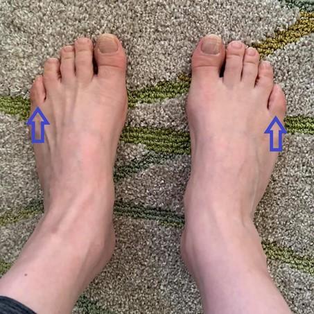 足刺激前の足の画像