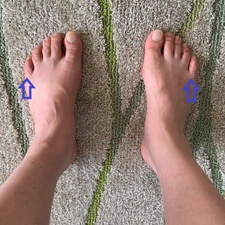足刺激後の足の画像