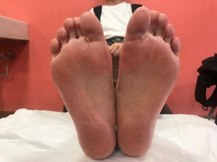 足刺激前の画像(くすんでいる)