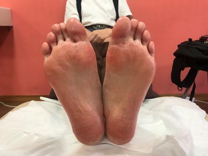 足刺激後の画像(土踏まずがはっきりしている)