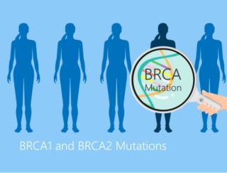 「遺伝」ってどれくらい関係するの?  ドクターが教える「遺伝性乳がん」の検査と対策