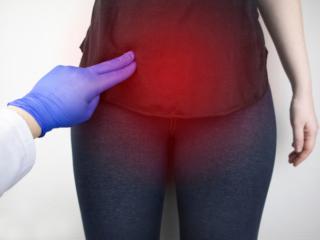 女性の腹部を指で押さえ、卵巣の位置を示す医師の手