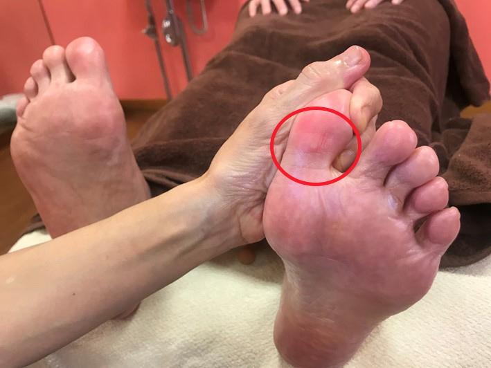 Tさん足指画像