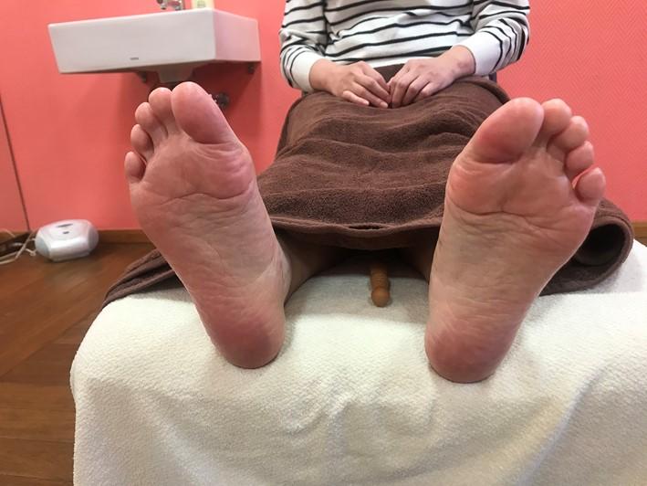 Tさん両足裏画像