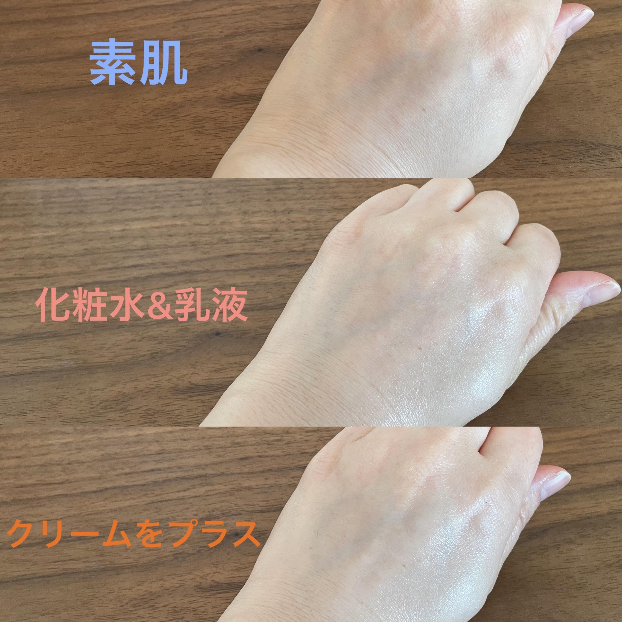 手の甲(3段)の画像