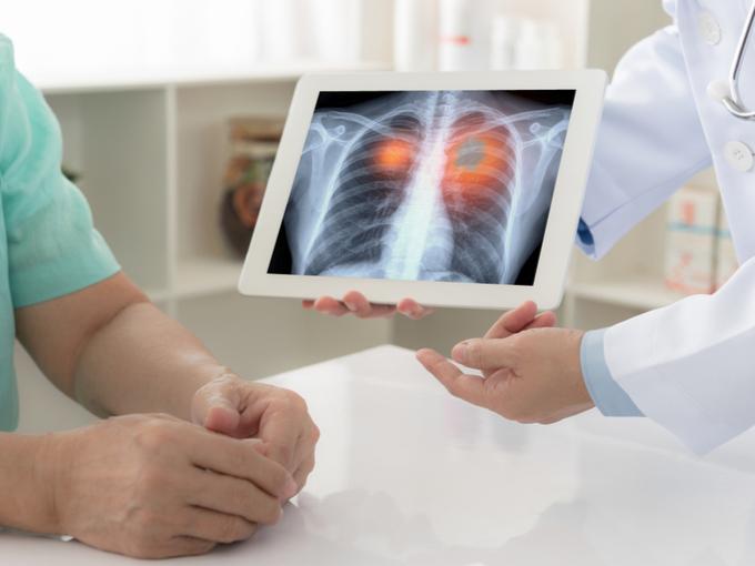 肺のレントゲン写真を示す医師