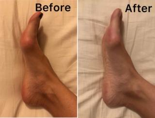 足刺激で体が温まり夜はぐっすり! 力みがちな体がゆるみはじめるまでを体験レポ