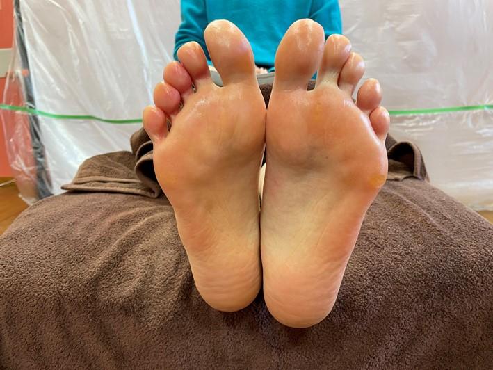 足刺激後の画像