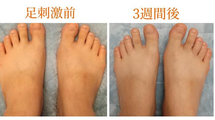 刺激前と3週間後の足の甲画像