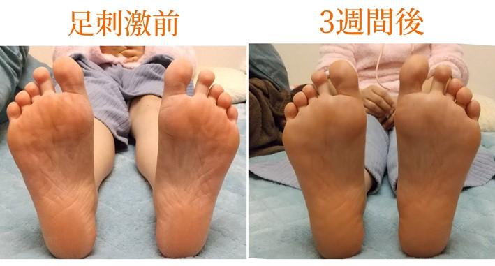 刺激前と3週間後の足裏画像