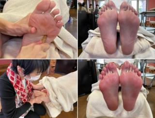 鍛えてきたスポーツ足なのに、冷えとむくみで足首がパンパンに… 足刺激で全身ポカポカになる方法
