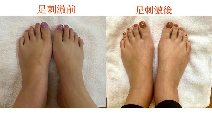 刺激前後の画像(足の甲)