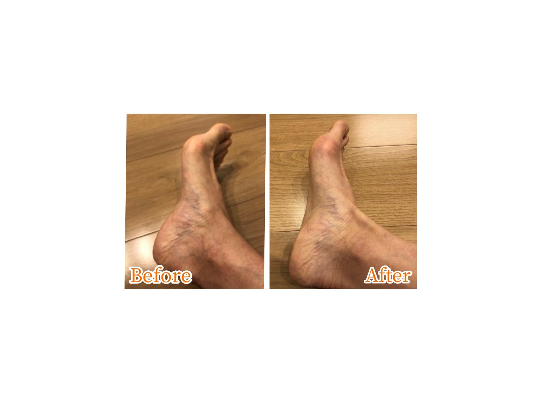 ビフォアフ足の甲画像