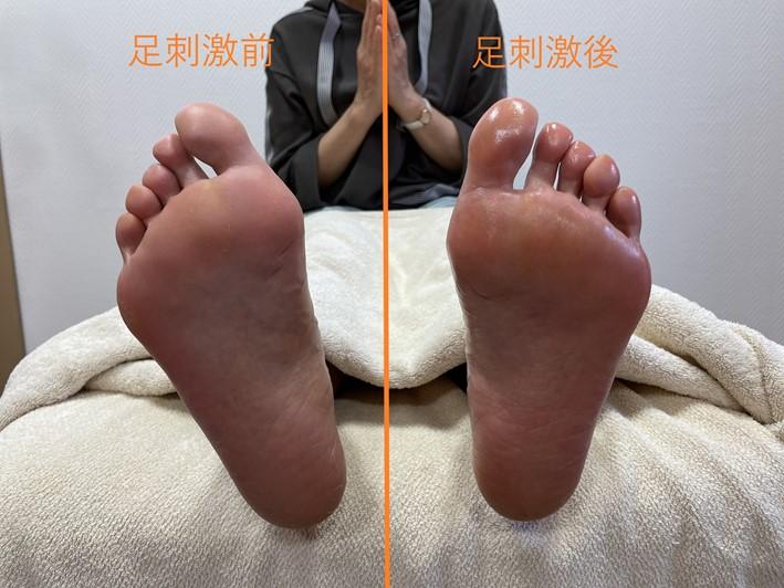 足刺激前後の画像