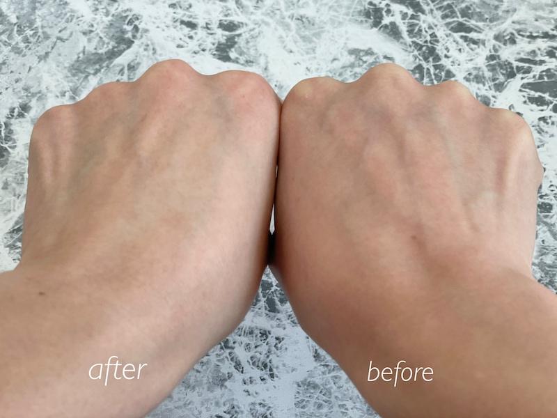 手の甲の使用前と後の比較画像