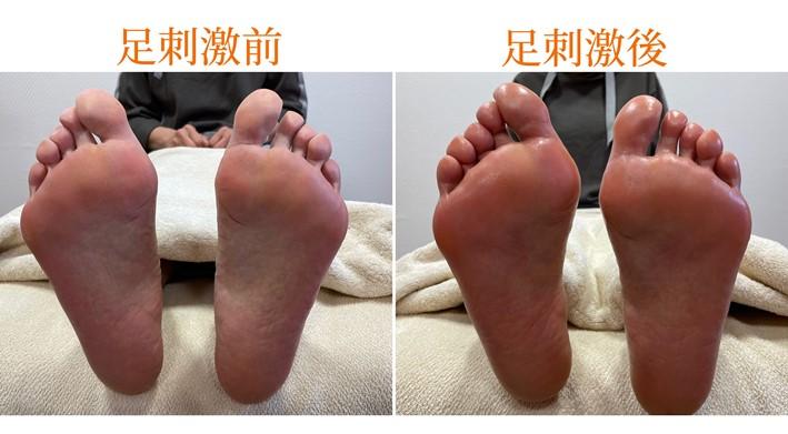 足刺激前後(両足)の画像