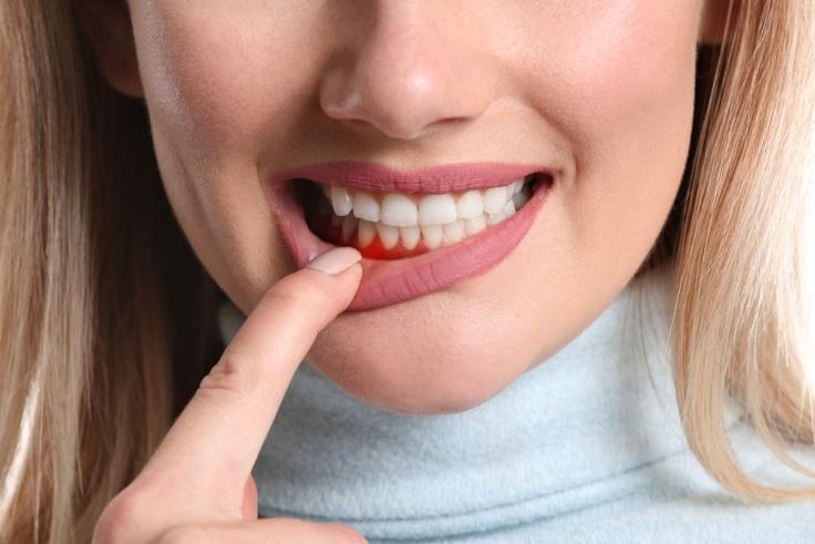 歯周病の女性口もと画像