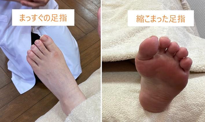 足の甲と裏画像