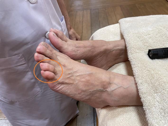 モニター足の甲の画像