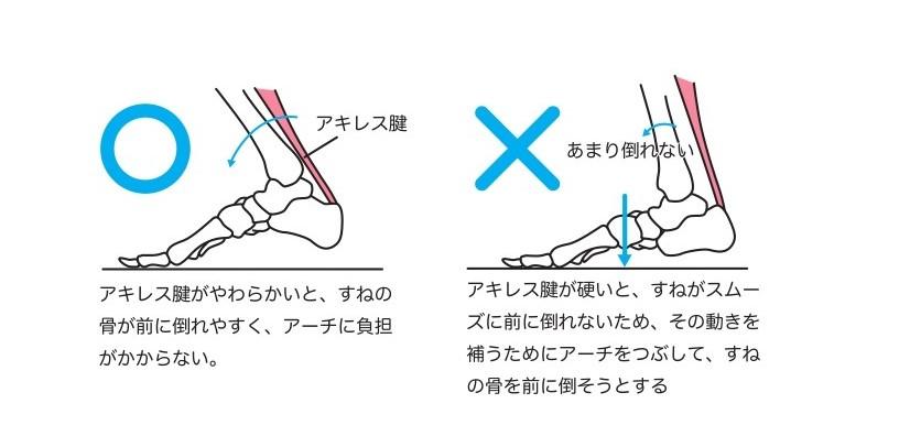 アキレス腱と歩行イラスト画像