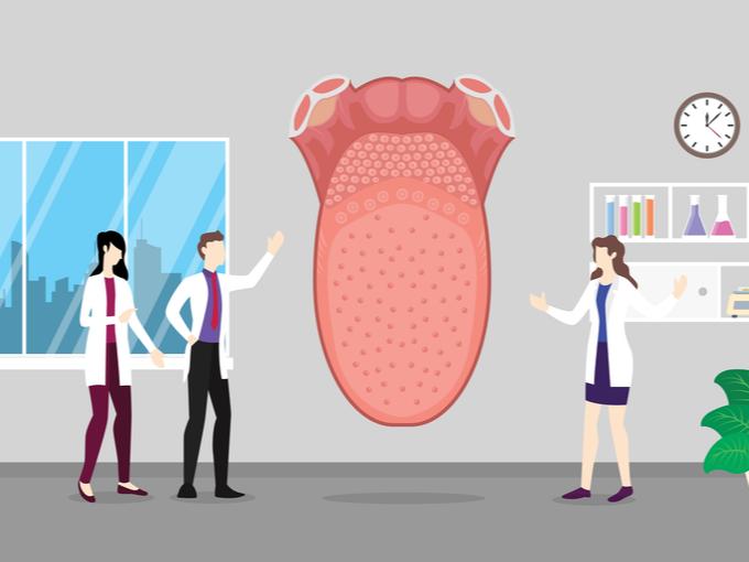 舌を診断する医師