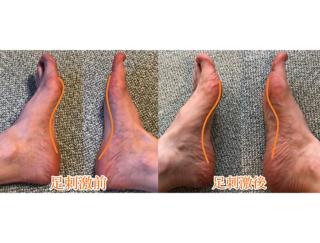 足裏刺激で暴飲暴食がストップ! 3週間で-2kgを達成した実体験レポート