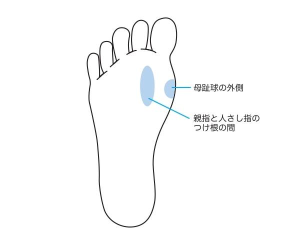 外反母趾の人にできやすいタコの位置