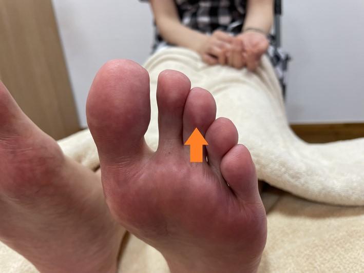 足の中指(オレンジ矢印あり)画像