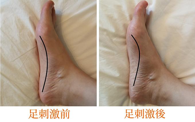 足の側面の前後の画像