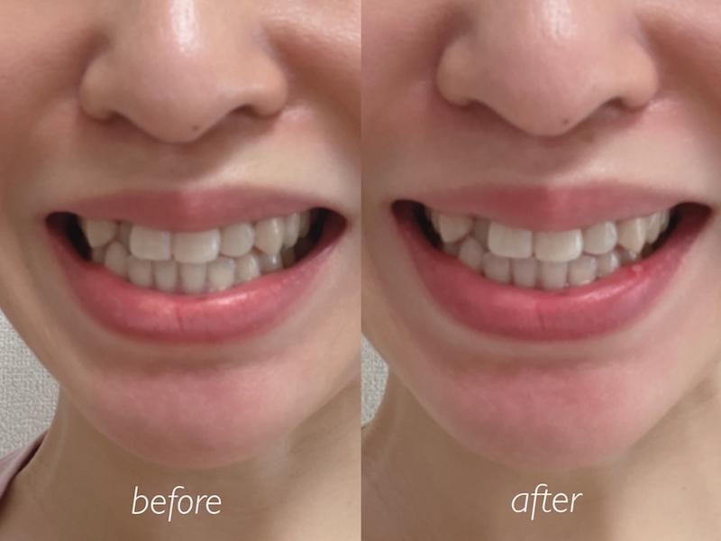 RFオーラルケア歯ブラシ シルキンWAVEの使用比較の口もと