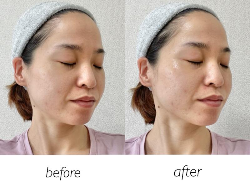 ヤーマン キャビスパRF コアの半顔使用の比較画像