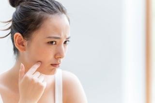 マスクの中は高温多湿! 皮膚科医が教える「マスクニキビ」の原因と対策