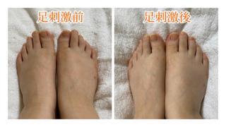 足の甲ビフォアフ画像