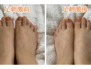 足のむくみが減って靴がゆるゆるに! 小さな変化が積み重なった3週間の足刺激生活とは?
