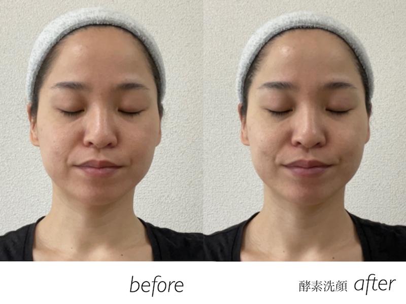 酵素洗顔後の顔の比較