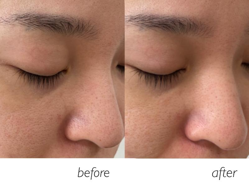 酵素洗顔後の小鼻周りのアップ画像比較